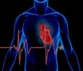 Особливості варіабельності ритму серця у хворих на цукровий діабет 2-го типу з кардіоваскулярною формою діабетичної автономної невропатії серця