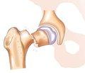 Остеопороз: механизм лечебного действия бисфосфонатов и клинические перспективы