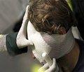 Клинико-эпидемиологические особенности сочетанной краниоторакальной травмы