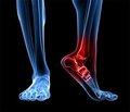Можливості ультразвукової діагностики епіфізеолізу та пошкоджень зв'язкового апарату надп'ятково-гомілкового суглоба вдітей