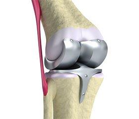 Трансплантация мениска коленного сустава: современное состояние проблемы Обзор литературы. Часть 1