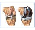 Сцинтиграфические количественные параметры операбельности при эндопротезировании у пациентов с посттравматическим остеоартрозом коленных суставов