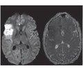 Lesion of central nervous system in vasculitis