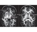 Рання дитяча нервовість, або невропатія: сучасні підходи до діагностики й лікування