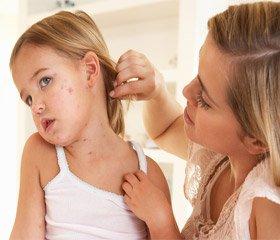 Менінгококова інфекція (Infectio Meningococciea). Частина 2