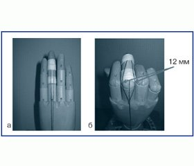 Біомеханічні особливості функціонування пальців кистей в умовах деформації при застарілих ушкодженнях сухожилків розгиначів