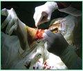 Місцеве лікування ішемічних ранових дефектів нижніх кінцівок із використанням модифікованих біологічних середовищ