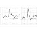 Электронейромиография в диагностике иоценке результатов лечения пациентов со стенозирующими лигаментитами пальцев кисти