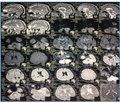 ГПМК у вертебробазилярному басейні на фоні вродженої аномалії хребтової артерії
