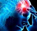 Дзеркальна терапія у фізичній нейрореабілітації пацієнтів після мозкового інсульту