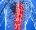 Інсульт спинного мозку (спінальний інсульт)