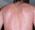 Стан антиендотоксинового імунітету в дітей, хворих на бактеріальні ангіни й скарлатину