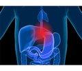 Практические аспекты патогенетической терапии гастроэзофагеальной рефлюксной болезни