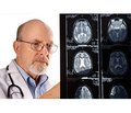 Можливості немедикаментозної корекції порушених функцій у пацієнтів із перенесеним геморагічним інсультом у відновному періоді