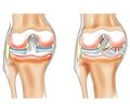 Трансплантация мениска коленного сустава: современное состояние проблемы. Обзор литературы. Часть 2