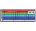 Нові аспекти діагностики диспластичного коксартрозу III–IV ступеня тяжкості