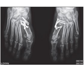 Correcting Arthrodesis of First Tarsometatarsal Joint in the Treatment of Hallux Valgus