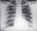 Туберкулез ребер