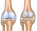 Комплексное лечение остеоартроза убольных старших возрастных групп скардиоваскулярной патологией