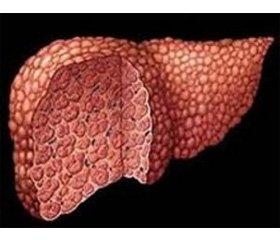 Клінічний випадок хвороби Вільсона — Коновалова (гепатолентикулярної дегенерації)