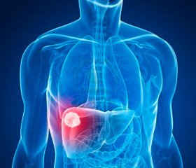 Increasing Efficacy of Treatment in Patients with Steatohepatitis