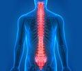 Діагностика і лікування сирінгомієлії