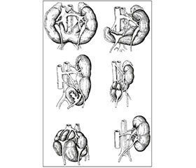 Congenital Anomalies of Kidney Position and Rotation: the Prevalence, Etiopathogenesis, Prenatal Diagnosis, Clinical Picture, Physical Development, Diagnosis, Treatment and Prevention