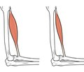 Sarcopenia falls and fractures