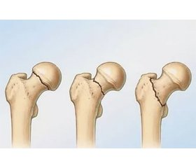 The modern state of the treatment for periprosthetic fractures of the femur