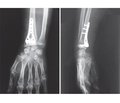 Own experience of treatment of distal metaphyseal forearm fracture