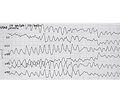 Clinical case of acute coronary syndrome with ST segment elevation complicated by complete heart block, acute heart failure, and sudden cardiac arres