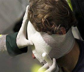 Летальність при поєднаній черепно-мозковій травмі