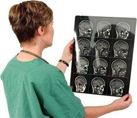 Немые инфаркты мозга (клинико-неврологические и структурно-функциональные особенности)
