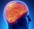 Как вылечить терроризм головного мозга?
