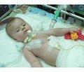 Клінічний випадок застосування протективних режимів штучної вентиляції легень при хворобі Вердніга — Гофмана у домашніх умовах