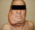 Особливості структурної перебудови кісткової тканини в чоловіків із лімфомою Ходжкіна на фоні хіміотерапевтичного лікування