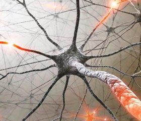 Unconventional myosin 1c as autoreactive cells apoptosis marker in multiple sclerosis