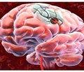 Діагностика ішемічного інсульту
