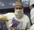 Блокада ангиотензина II у реципиентов почечного трансплантата