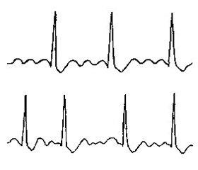 Холодная погода ассоциируется сповышенным риском ишемического инсульта у пациентов с фибрилляцией предсердий