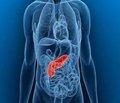 Выбор способа и объема оперативного пособия в зависимости от распространенности острого небилиарного инфицированного некротического панкреатита