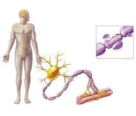 Синдром Гийена — Барре, связанный с инфекцией SARS-CoV-2: причинность или совпадение?
