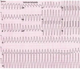 A clinical case of persistent ventricular fibrillation on the background of Torsade de pointes syndrome and multiple electroimpulse therapy— defibrillation