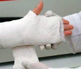 Клінічні результати остеосинтезу навколо - тавнутрішньосуглобових переломів кісток різними видами імплантатів