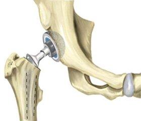 Ендопротезування кульшового суглоба в людей старших вікових груп при внутрішньосуглобових переломах шийки стегна