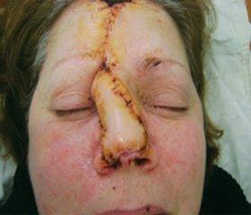 Кожная аутопластика сложных дефектов наружного носа