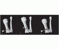 Особливості виконання корегувальних остеотомій першої плеснової кістки при hallux valgus