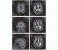 Нейросифилис. Аналитическое обозрение и собственное наблюдение