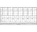 Нарушение ритма сердца: трепетание предсердий у новорожденного. Случай из практики