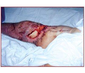 Гостра ниркова недостатність при тяжких отруєннях метадоном